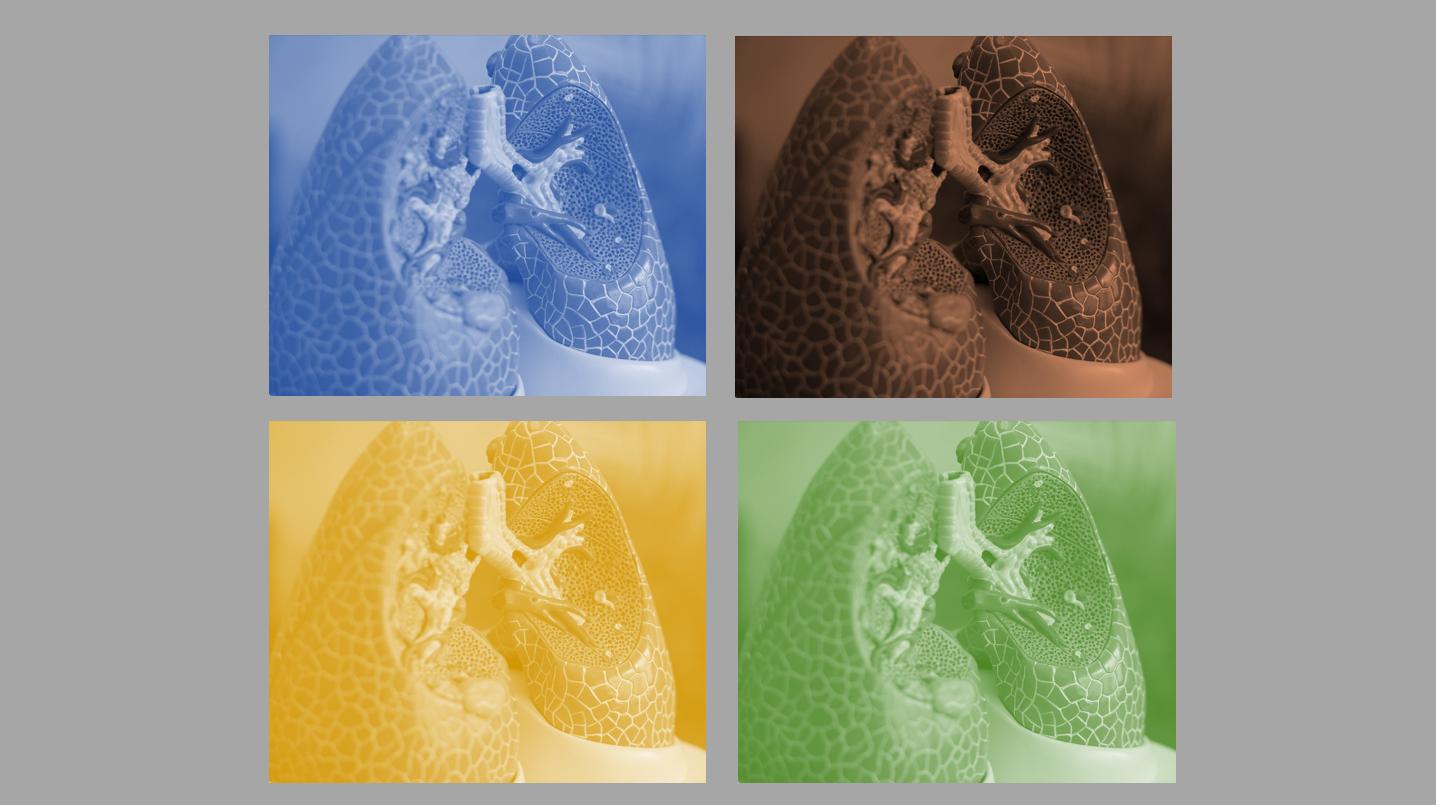 Múltiplas faces do câncer de pulmão de pequenas células